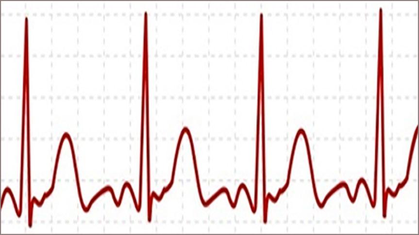 Graphique illustrant un électrocardiogramme pour Méditation Transcendantale